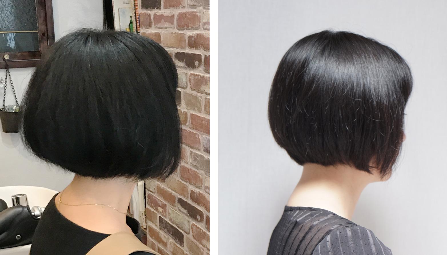 画像:Annの施術前(左)と施術後(右)