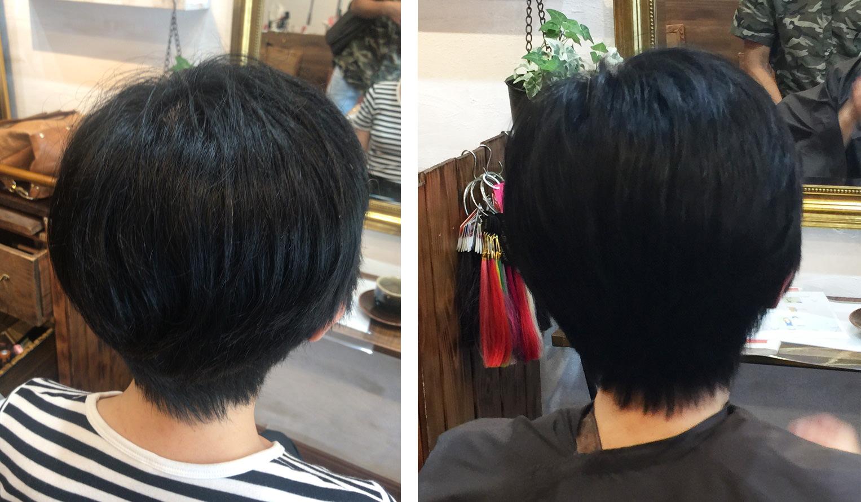 画像:Umiの施術前(左)と施術後(右)